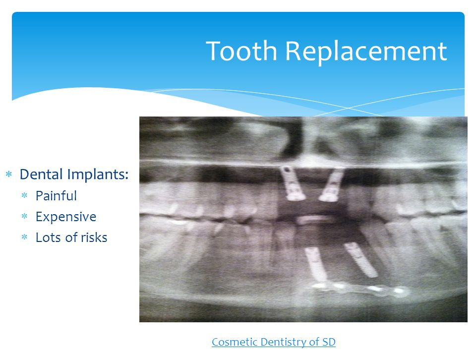 Dental Implants: Painful Expensive Lots of risks Tooth Replacement Cosmetic Dentistry of SD