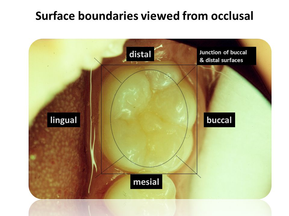 Surface boundaries viewed from occlusal mesial distal buccallingual Junction of buccal & distal surfaces