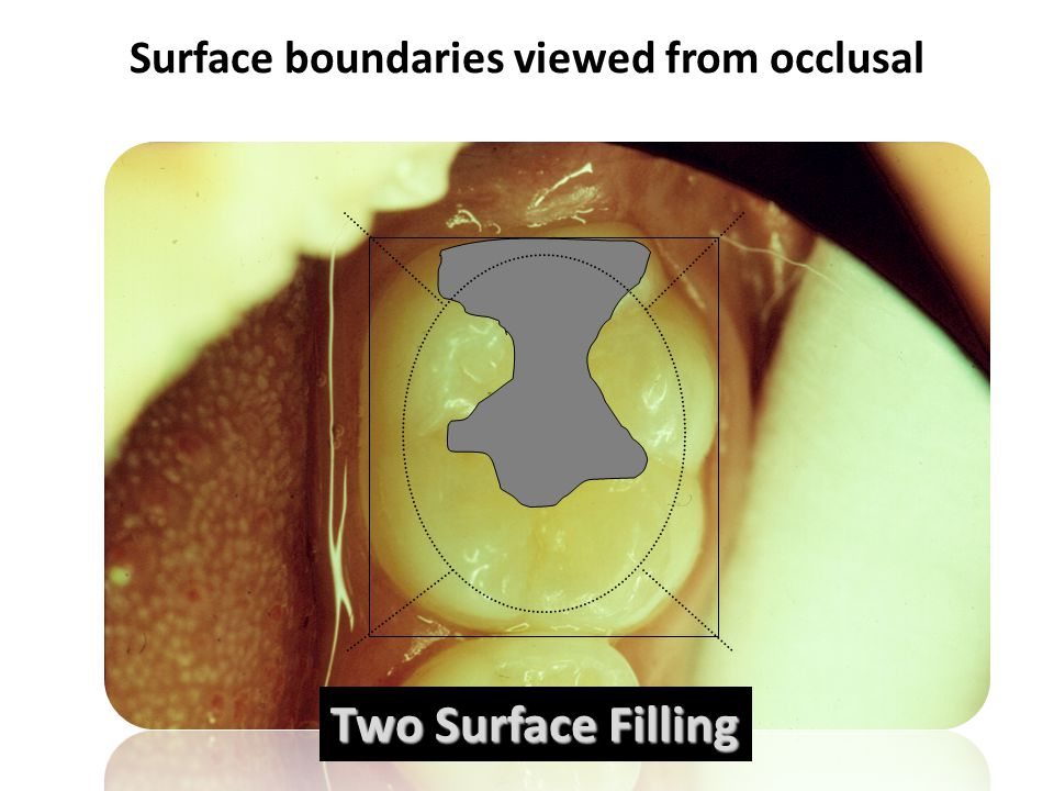 Surface boundaries viewed from occlusal Two Surface Filling