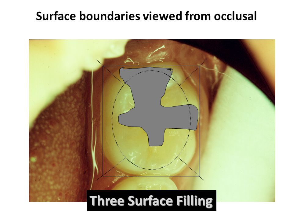 Surface boundaries viewed from occlusal Three Surface Filling