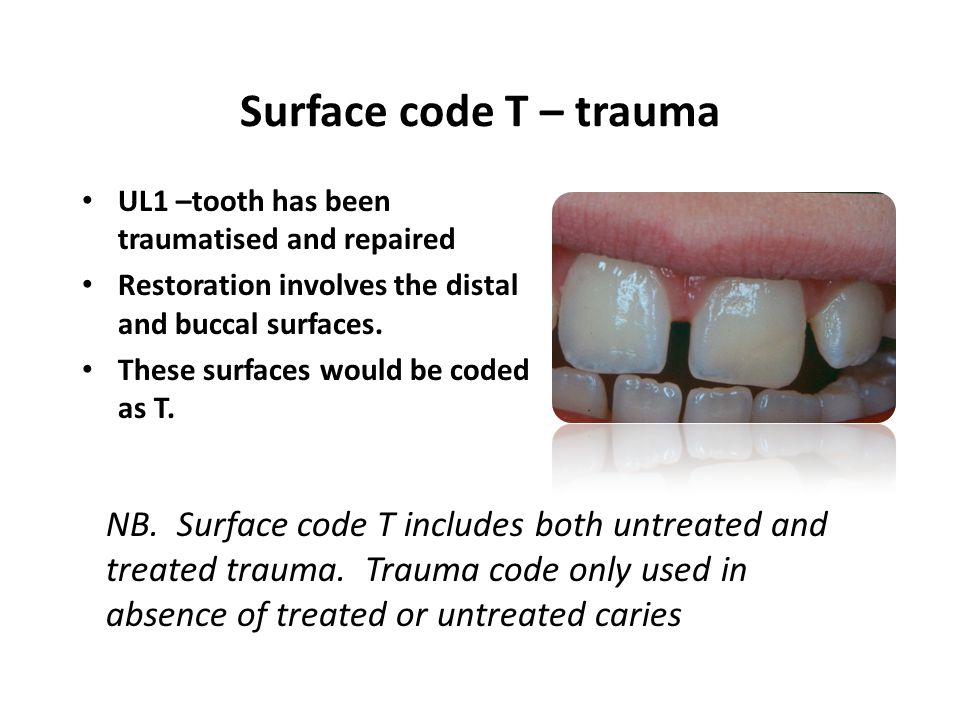 UL1 –tooth has been traumatised and repaired Restoration involves the distal and buccal surfaces. These surfaces would be coded as T. NB. Surface code