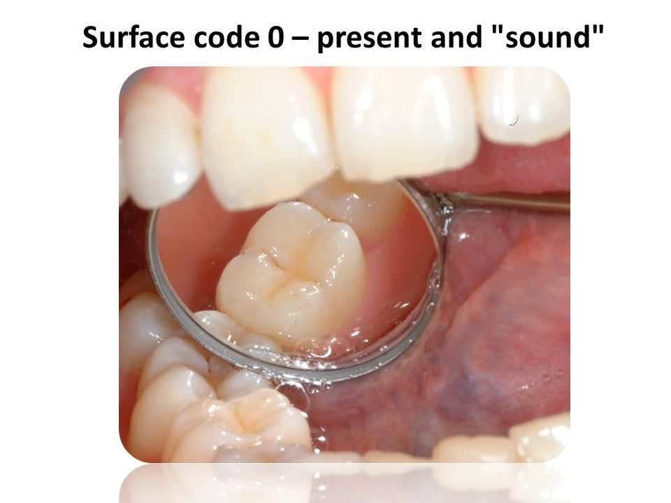 Surface code 0 – present and
