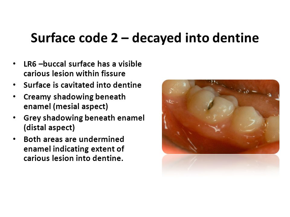 LR6 –buccal surface has a visible carious lesion within fissure Surface is cavitated into dentine Creamy shadowing beneath enamel (mesial aspect) Grey
