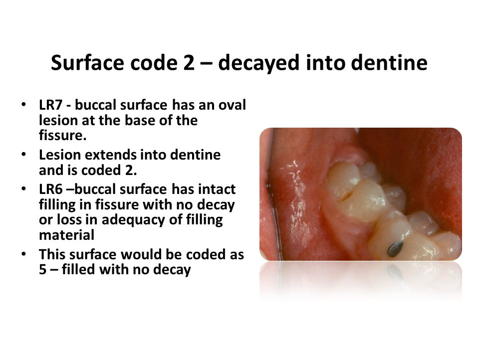 LR7 - buccal surface has an oval lesion at the base of the fissure. Lesion extends into dentine and is coded 2. LR6 –buccal surface has intact filling