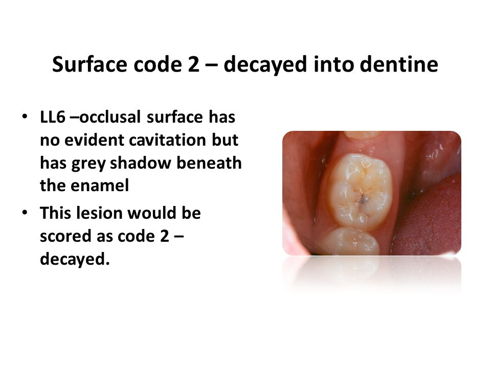 LL6 –occlusal surface has no evident cavitation but has grey shadow beneath the enamel This lesion would be scored as code 2 – decayed.