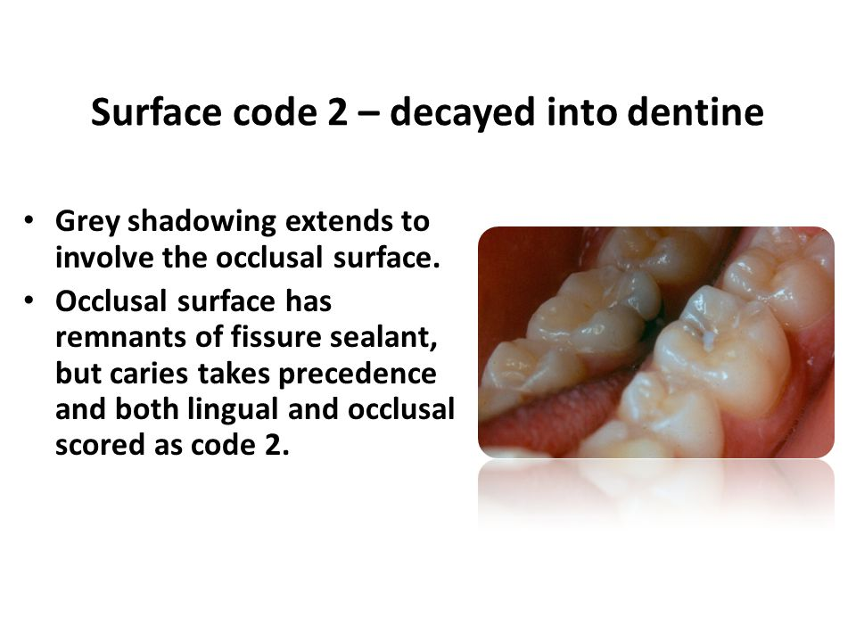 Surface code 2 – decayed into dentine Grey shadowing extends to involve the occlusal surface.