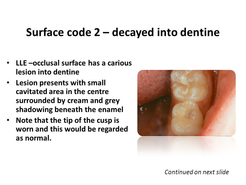 LLE –occlusal surface has a carious lesion into dentine Lesion presents with small cavitated area in the centre surrounded by cream and grey shadowing