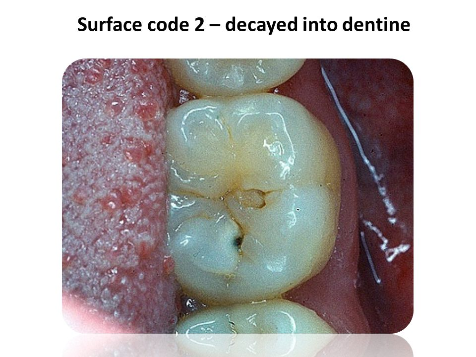 Surface code 2 – decayed into dentine