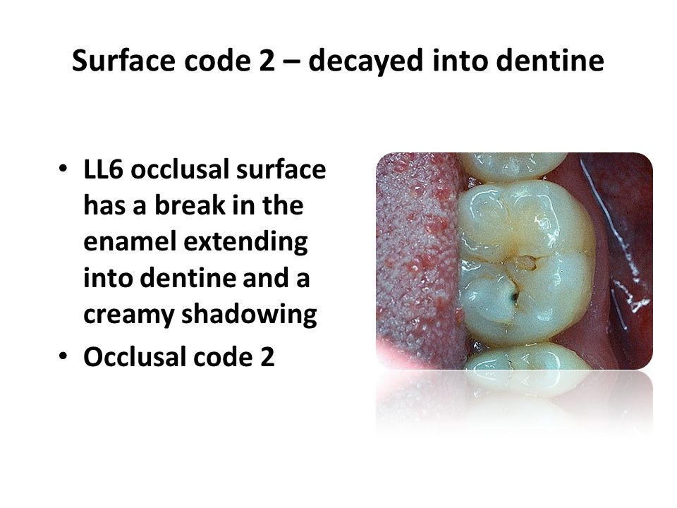 LL6 occlusal surface has a break in the enamel extending into dentine and a creamy shadowing Occlusal code 2