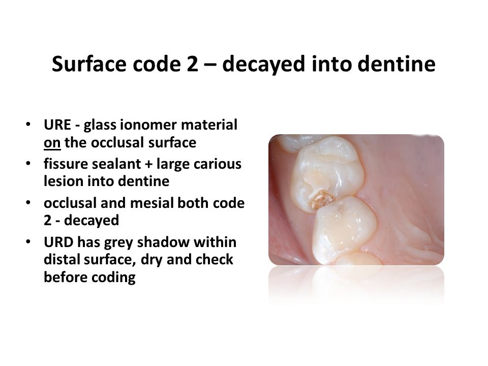 URE - glass ionomer material on the occlusal surface fissure sealant + large carious lesion into dentine occlusal and mesial both code 2 - decayed URD has grey shadow within distal surface, dry and check before coding