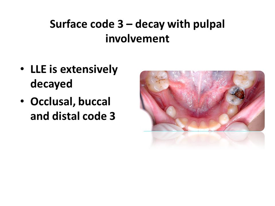 LLE is extensively decayed Occlusal, buccal and distal code 3