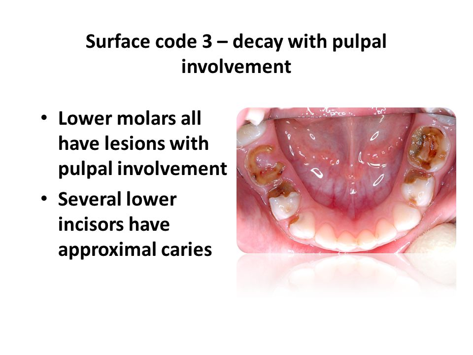 Lower molars all have lesions with pulpal involvement Several lower incisors have approximal caries