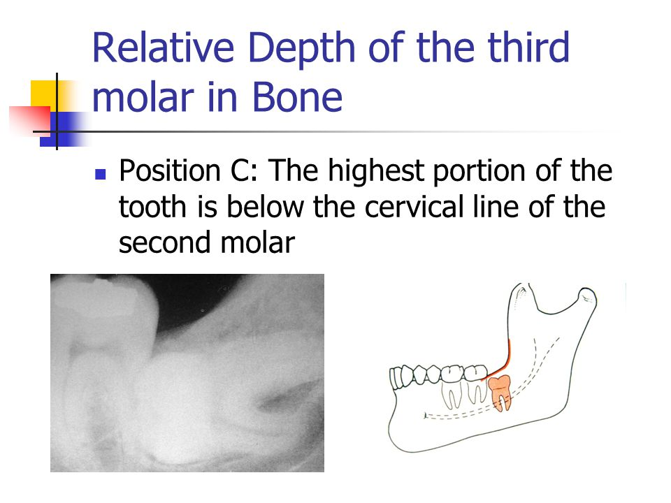 Relative Depth of the third molar in Bone Position C: The highest portion of the tooth is below the cervical line of the second molar