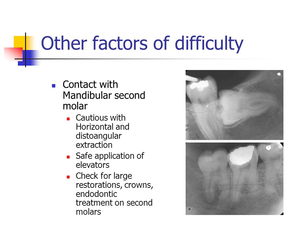 Other factors of difficulty Contact with Mandibular second molar Cautious with Horizontal and distoangular extraction Safe application of elevators Ch