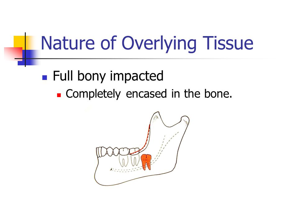 Nature of Overlying Tissue Full bony impacted Completely encased in the bone.