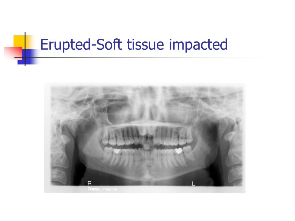 Erupted-Soft tissue impacted