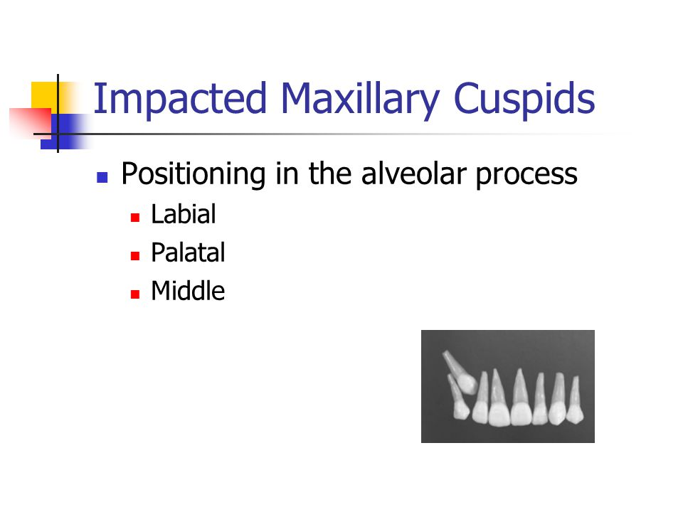Impacted Maxillary Cuspids Positioning in the alveolar process Labial Palatal Middle