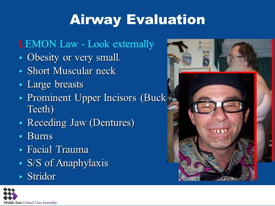 LEMON Law - Look externally Obesity or very small. Obesity or very small. Short Muscular neck Short Muscular neck Large breasts Large breasts Prominen