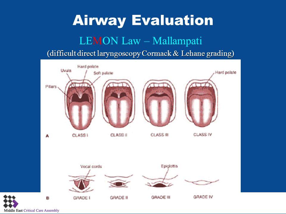 LEMON Law – Mallampati (difficult direct laryngoscopy Cormack & Lehane grading)