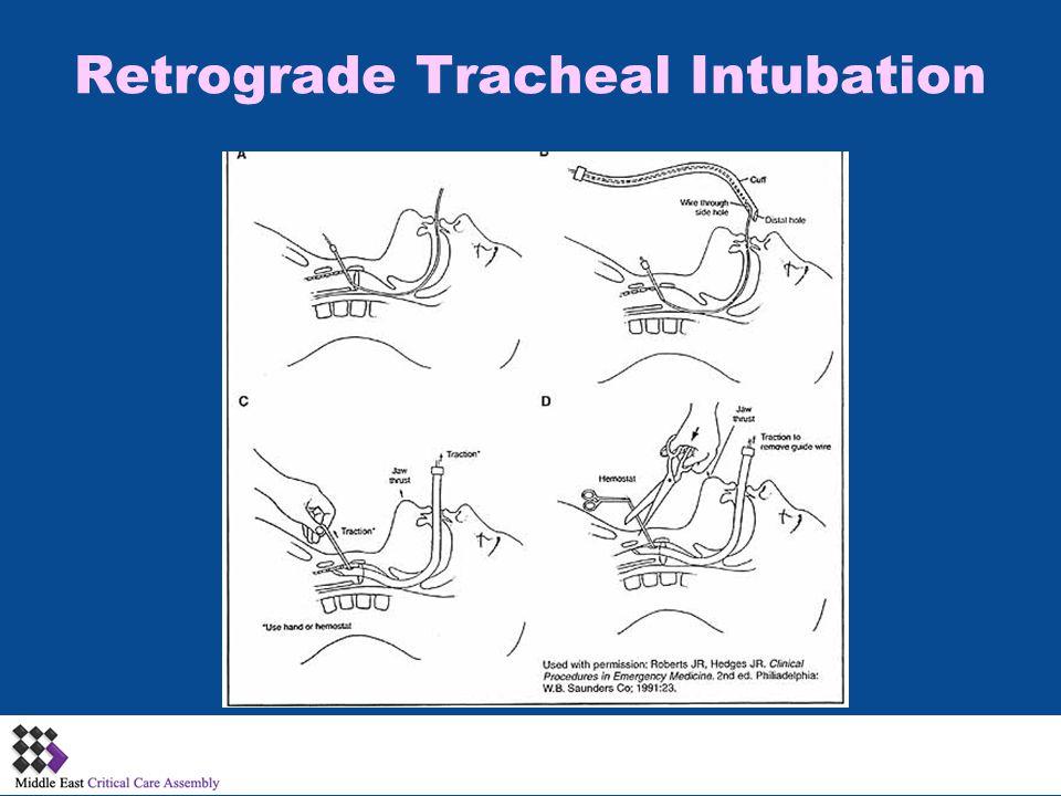 Retrograde Tracheal Intubation