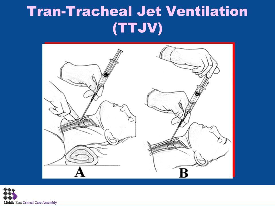 Tran-Tracheal Jet Ventilation (TTJV)