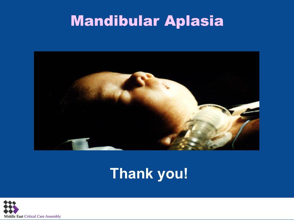 Mandibular Aplasia Thank you!