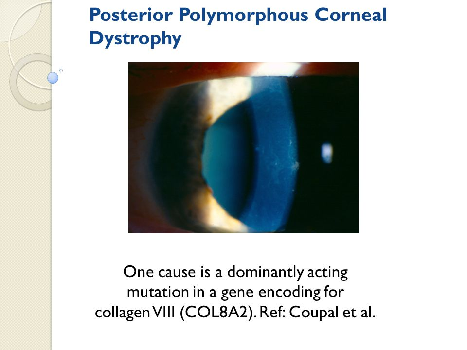 Posterior Polymorphous Corneal Dystrophy One cause is a dominantly acting mutation in a gene encoding for collagen VIII (COL8A2). Ref: Coupal et al.