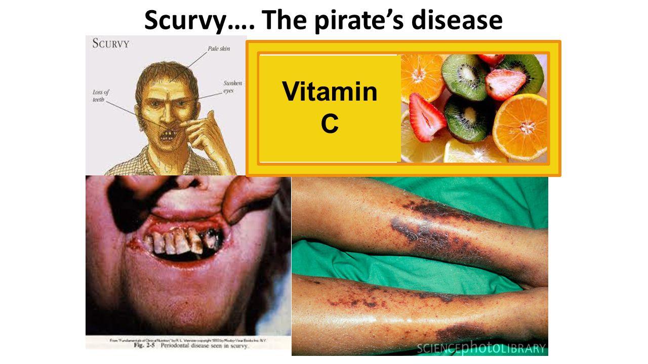 Scurvy…. The pirates disease What prevents scurvy? Vitamin C