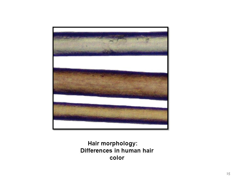 15 Hair morphology: Differences in human hair color