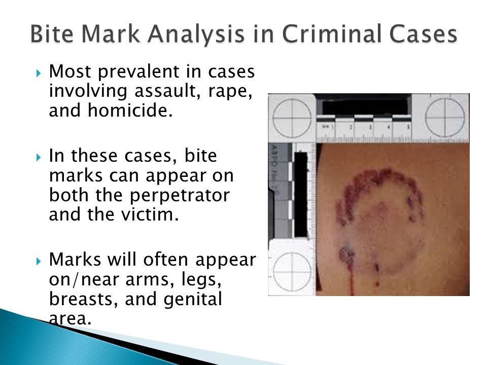 Most prevalent in cases involving assault, rape, and homicide. In these cases, bite marks can appear on both the perpetrator and the victim. Marks wil