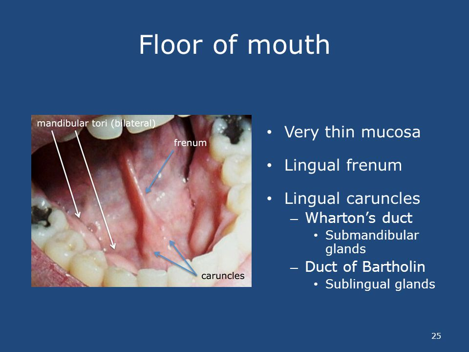 Floor of mouth Very thin mucosa Lingual frenum Lingual caruncles – Whartons duct Submandibular glands – Duct of Bartholin Sublingual glands 25