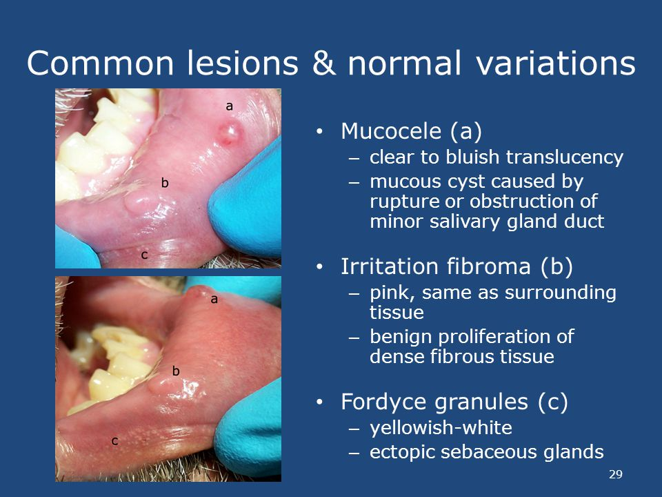 Common lesions & normal variations Mucocele (a) – clear to bluish translucency – mucous cyst caused by rupture or obstruction of minor salivary gland