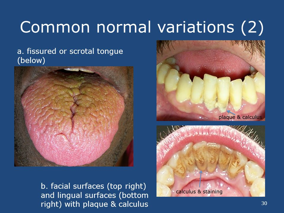 Common normal variations (2) a. fissured or scrotal tongue (below) b. facial surfaces (top right) and lingual surfaces (bottom right) with plaque & ca