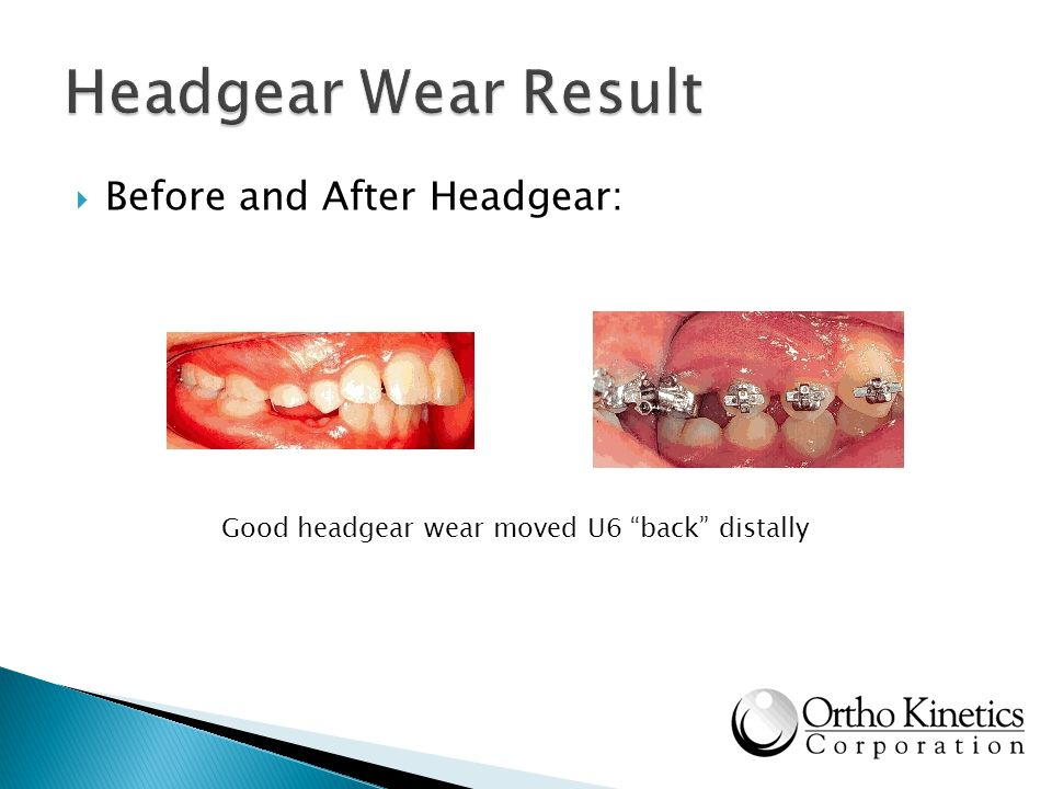 Before and After Headgear: Good headgear wear moved U6 back distally