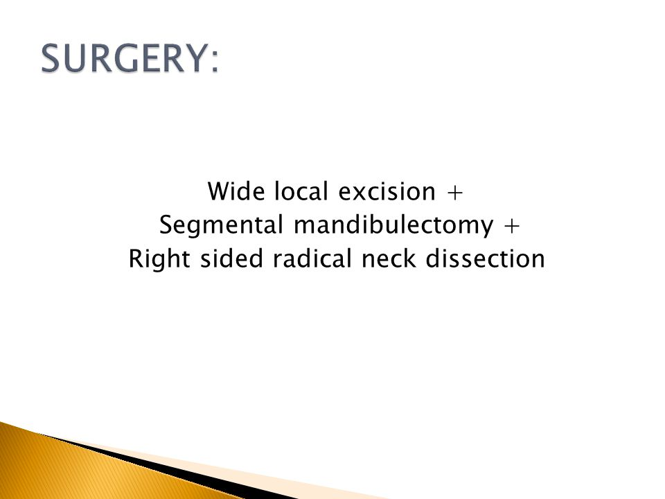 Wide local excision + Segmental mandibulectomy + Right sided radical neck dissection