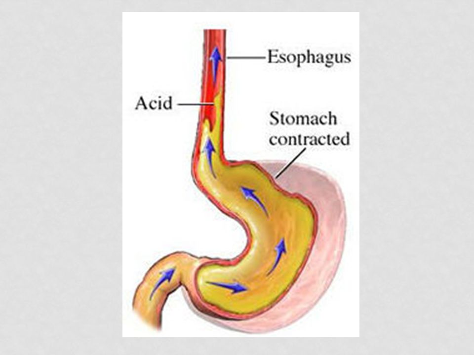 GASTRIC JUICE Acidic (pH 1.5-2.5) (HCl) Pepsin- an enzyme that breaks down large proteins into amino acids. HCl activates pepsin BOLUS + GASTRIC JUICE