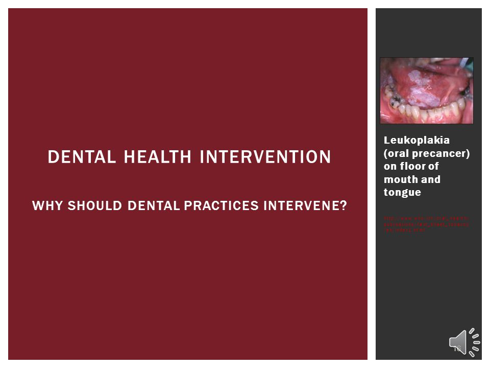 Leukoplakia (oral precancer) on floor of mouth and tongue http://www.who.int/oral_health/ publications/fact_sheet_tobacco /en/index1.html 16 DENTAL HEALTH INTERVENTION WHY SHOULD DENTAL PRACTICES INTERVENE?