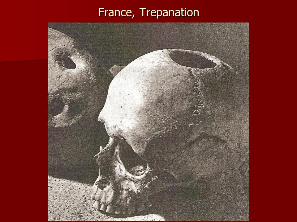 France, Trepanation