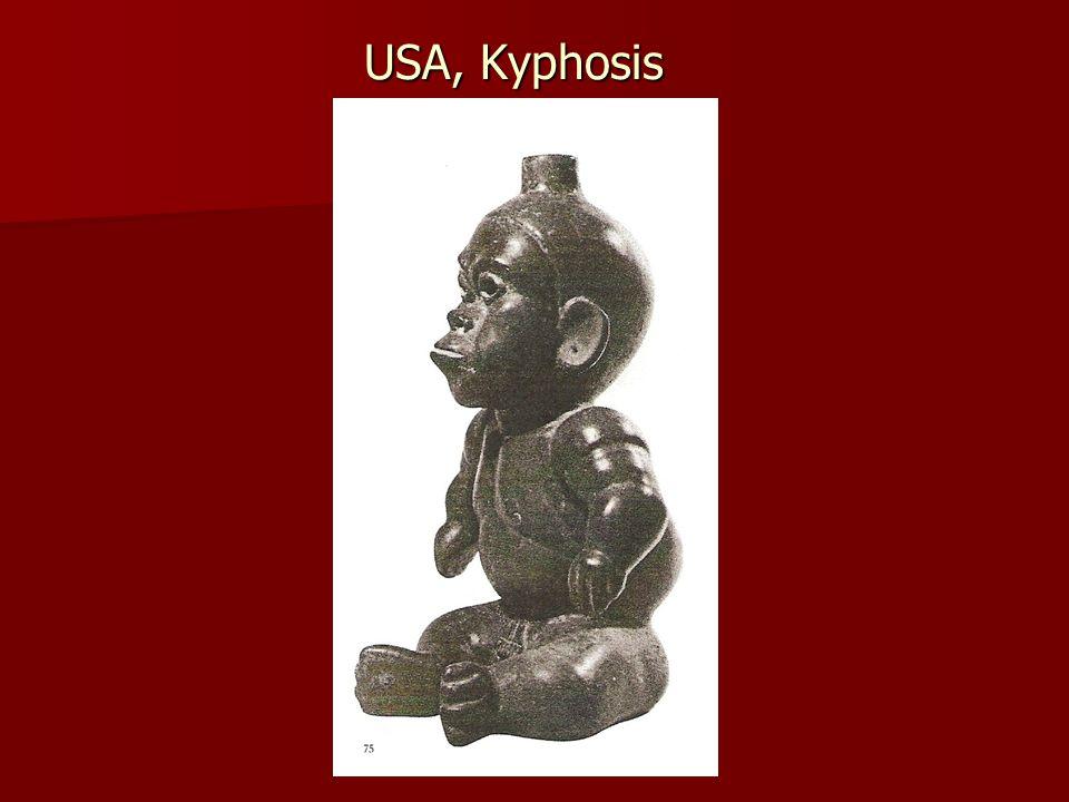 USA, Kyphosis