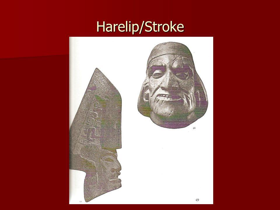 Harelip/Stroke