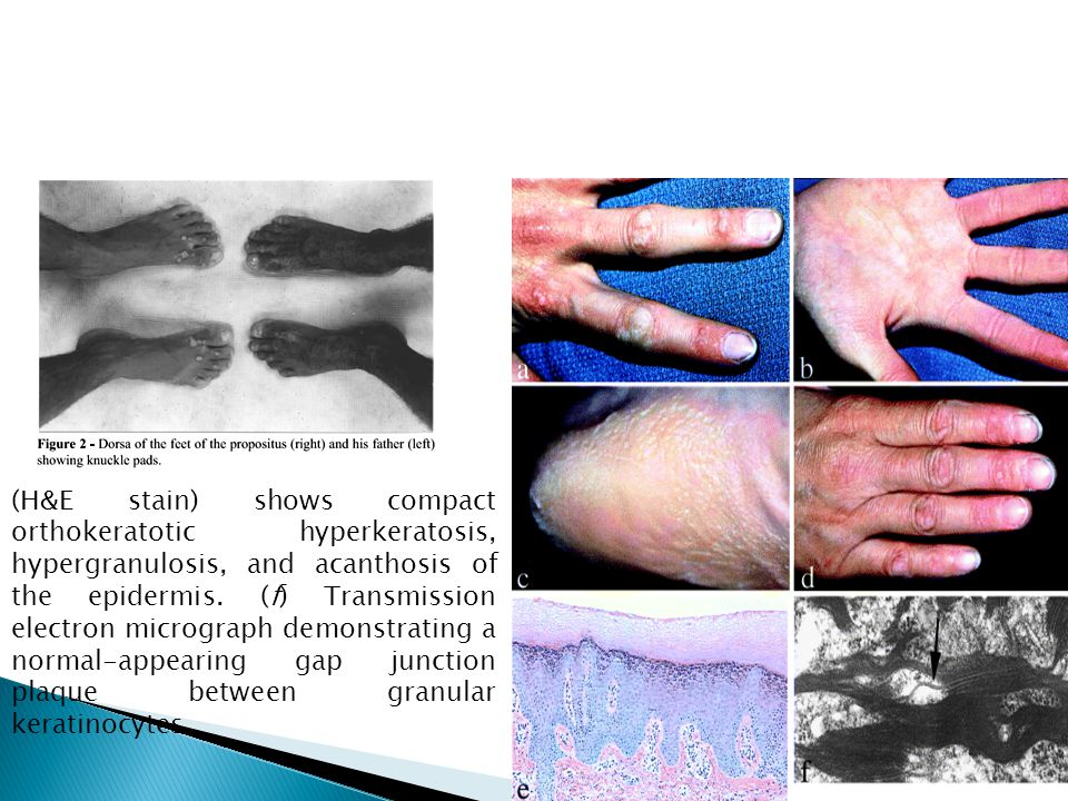 (H&E stain) shows compact orthokeratotic hyperkeratosis, hypergranulosis, and acanthosis of the epidermis. (f) Transmission electron micrograph demons