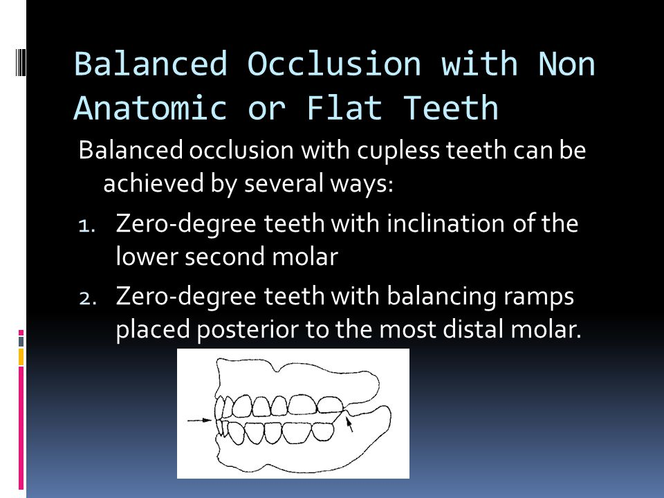 Balanced Occlusion with Non Anatomic or Flat Teeth Balanced occlusion with cupless teeth can be achieved by several ways: 1.