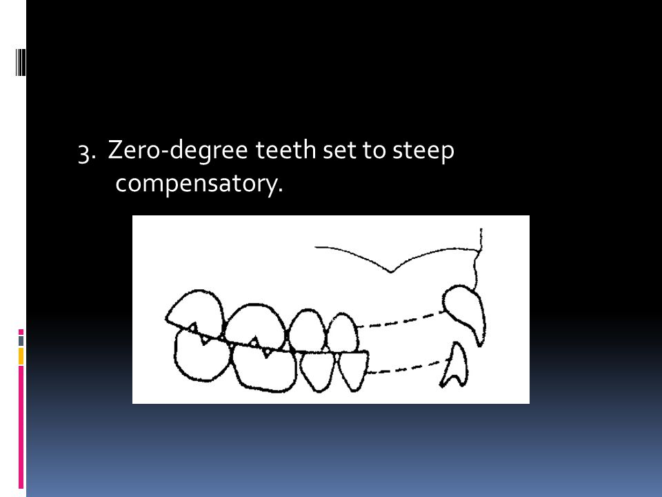 3. Zero-degree teeth set to steep compensatory.