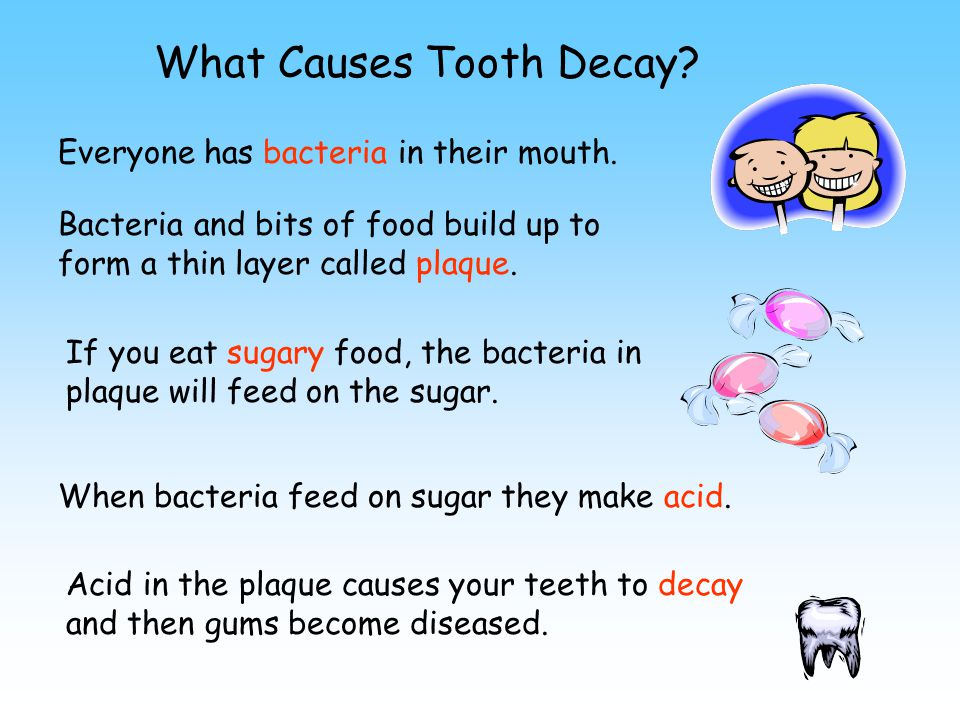 What Causes Tooth Decay. Everyone has bacteria in their mouth.