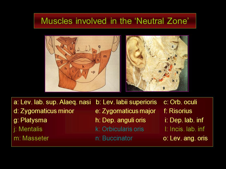 Muscles involved in the Neutral Zone a: Lev. lab. sup. Alaeq. nasi b: Lev. labii superioris c: Orb. oculi d: Zygomaticus minor e: Zygomaticus major f: