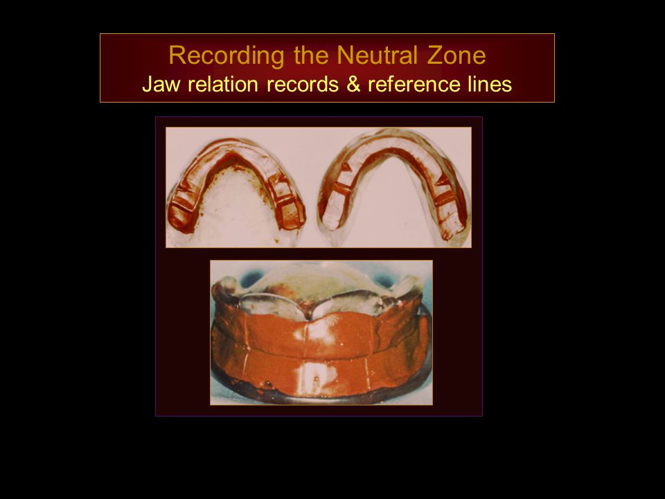Recording the Neutral Zone Jaw relation records & reference lines