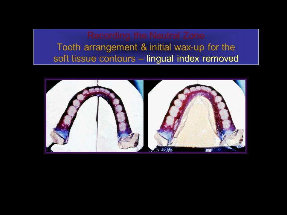 Recording the Neutral Zone Tooth arrangement & initial wax-up for the soft tissue contours – lingual index removed
