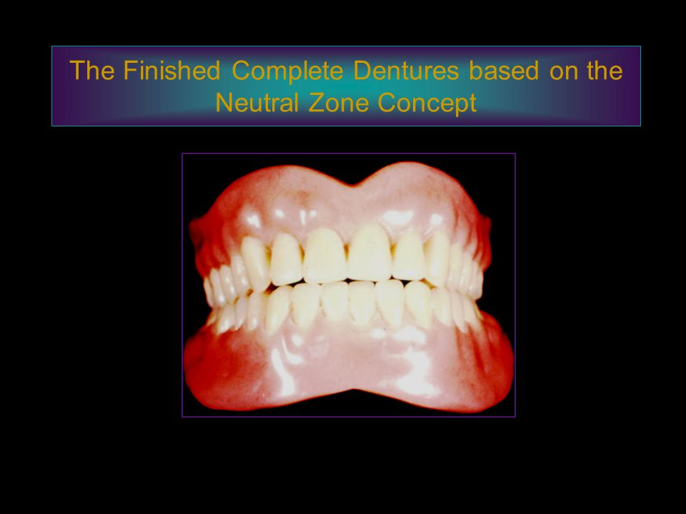 The Finished Complete Dentures based on the Neutral Zone Concept