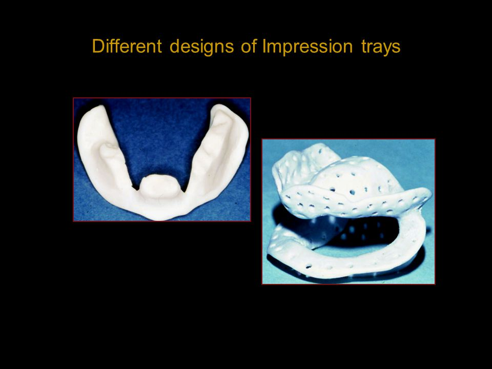 Different designs of Impression trays