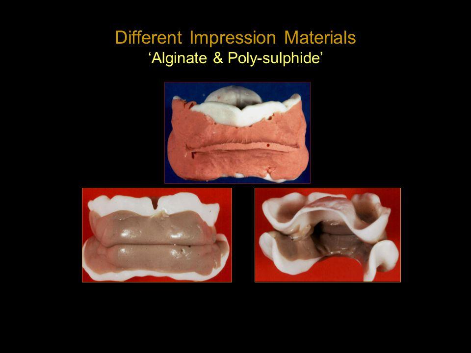 Different Impression Materials Alginate & Poly-sulphide
